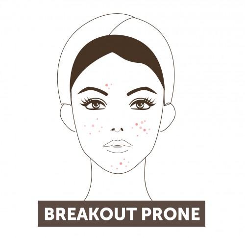 Breakout Prone